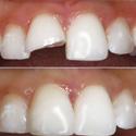 repaired tooth using bonding