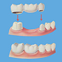 dental bridge animation