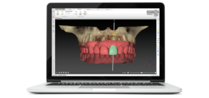 3d model of teeth on computer
