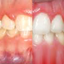 before and after gingivectomy