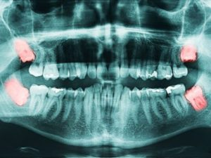 impacted wisdom teeth xray